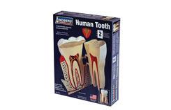 Lindberg 8:1 Human Tooth - ln71312